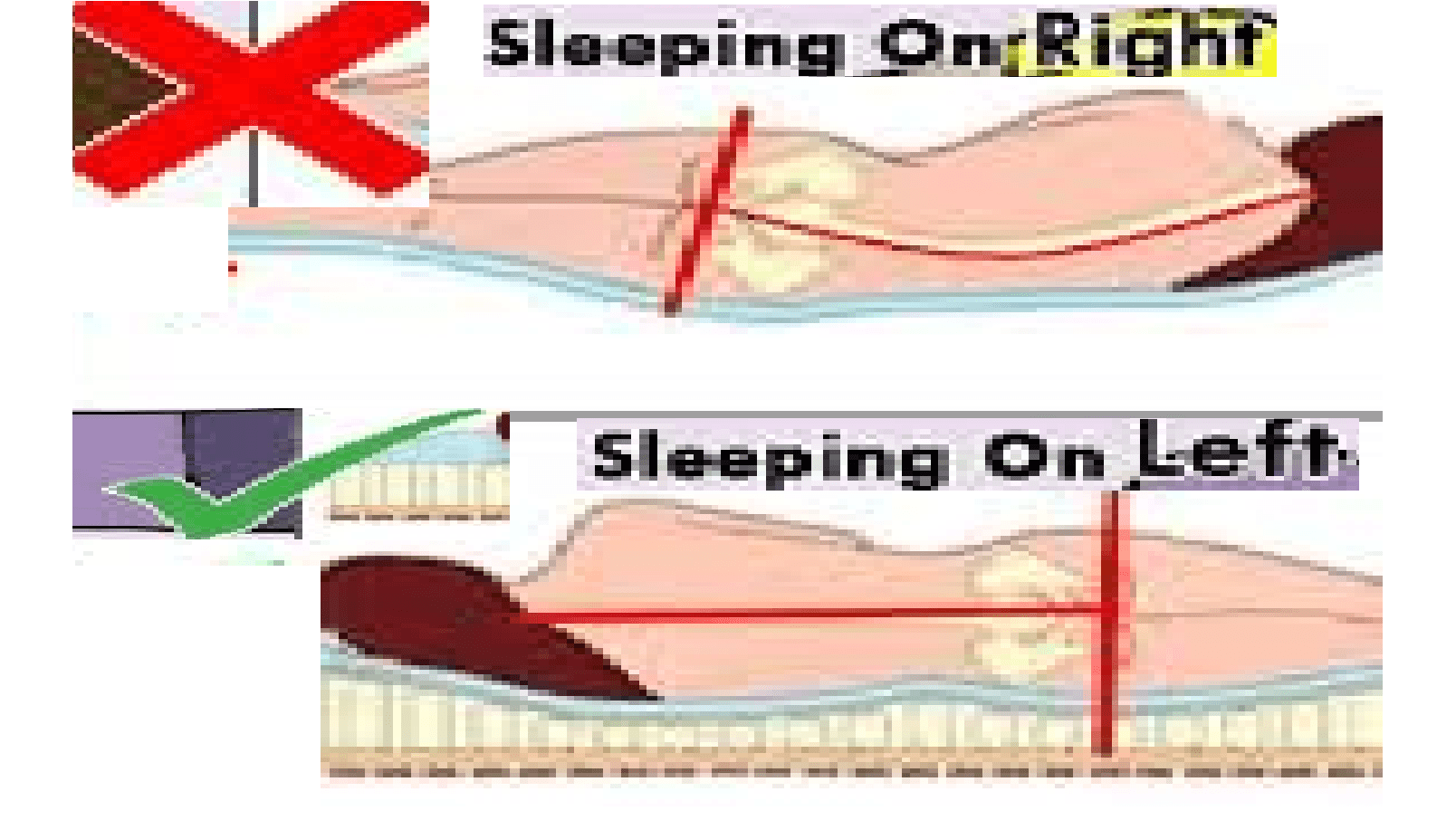 Why You Should Sleep on Your Left Side?