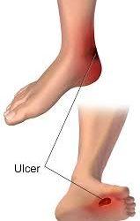 पैरो पर मधुमेह के प्रभाव के 7 लक्षण और सावधानिया || शुगर के लक्षण