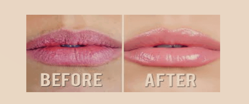 Chapped lips treatment