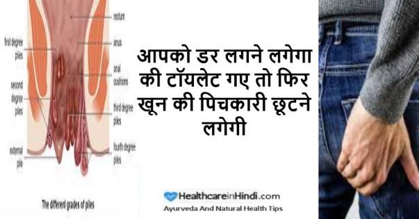 Babasir ke Laksan in Hindi